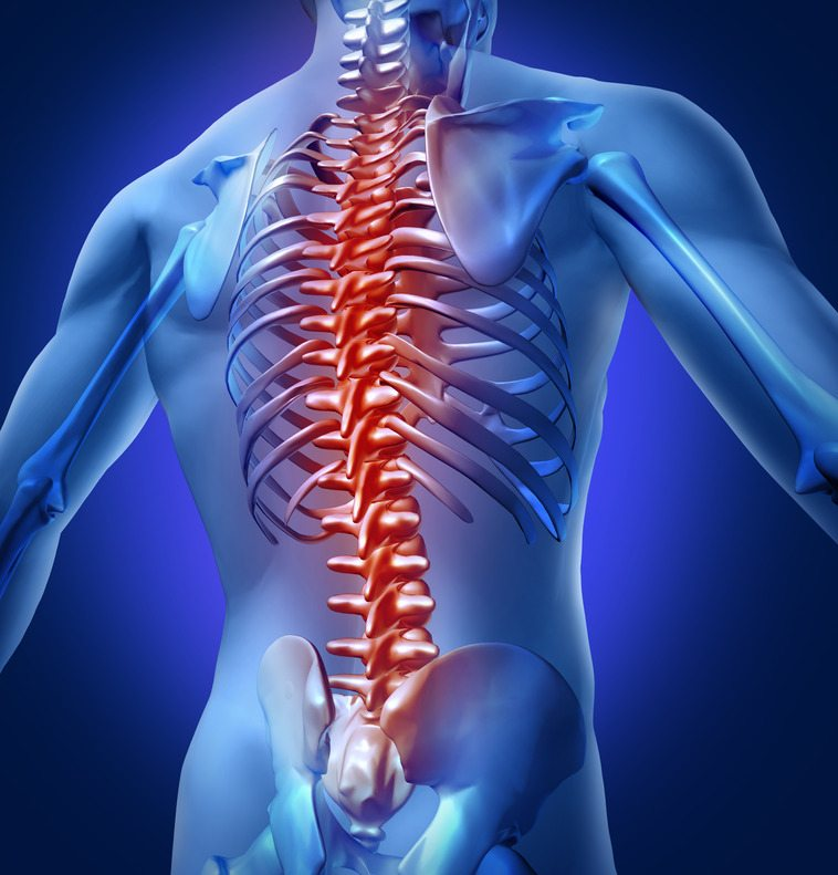 Spines and Scoliosis - Florida Medical Clinic