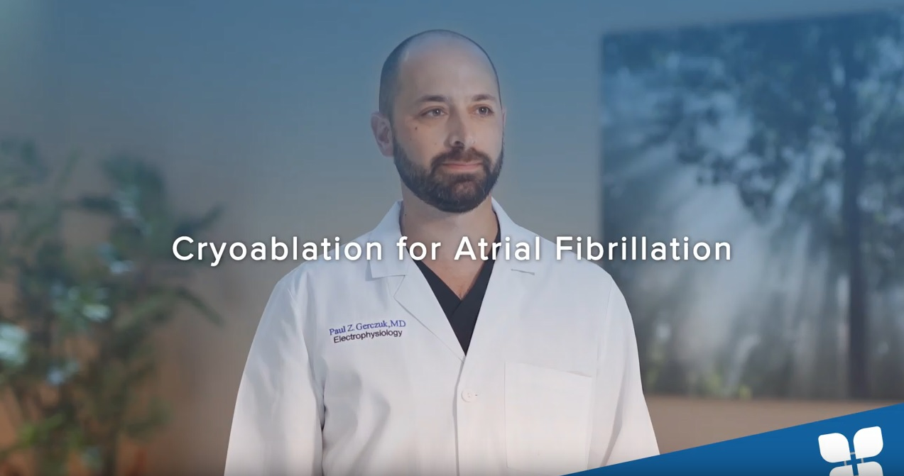 Cryoablation for Atrial Fibrillation